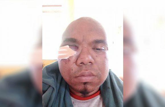 Korban Penganiayaan di Hutumuri Berharap Kasusnya Ditingkatkan ke Penyidikan